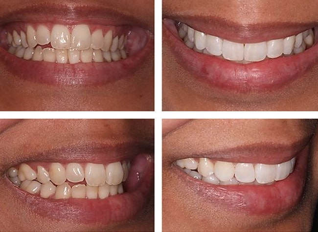 teeth whitening in bristol gloucester